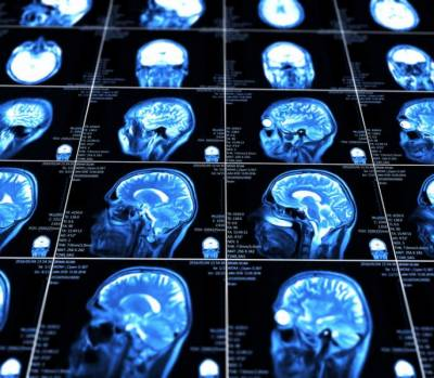 Novel technology can deliver drugs to brain injuries
