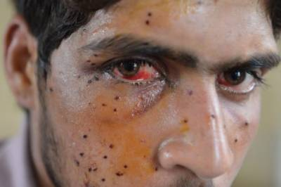 Indian Troops admit of firing 1.7 million pellets against innocent Kashmiris