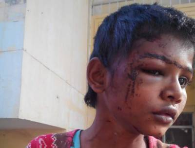 Tayyaba Torture Case: Medical Examination report surfaces