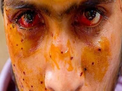 Kashmir struggle can't be suppressed by pellet guns: Mirwaiz