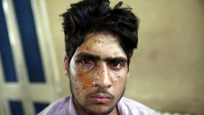 Amnesty International grills India over use of pellet guns in occupied Kashmir