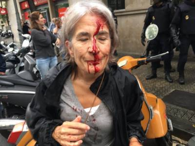 Over 800 required 'medical attention' in Catalonia clashes: regional govt