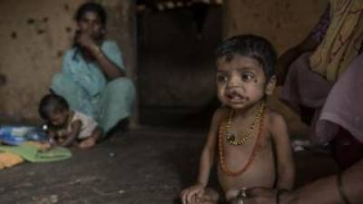 India ranked among World's worst country for global hunger Index: Report