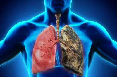 One crore Pakistanis suffering from respiratory diseases