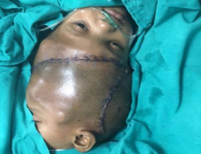 Indian surgeons separate twin boys with conjoined heads