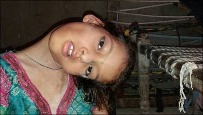 Pakistani girl with hanging head forced to live like a pariah