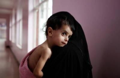 Yemen: UN warns of world biggest famine in decades