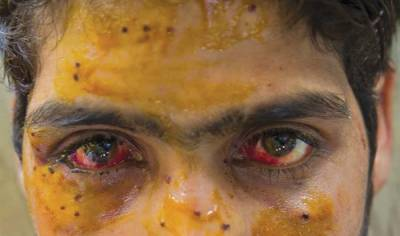 17 Kashmiri protesters martyred by pellet guns fire: Indian home ministry Report