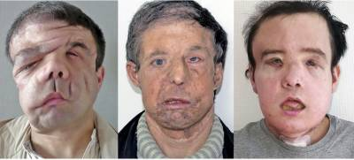 A man with three faces treated in France