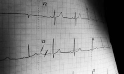 Head of Nawaz's medical team suffers cardiac arrest