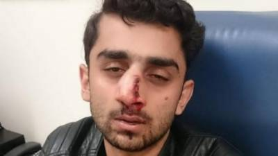 Pakistani student at Newcastle University left with broken nose after a 'racist attack'