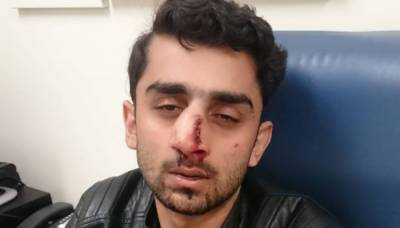 Pakistani student brutally attacked in a case of hate crime, racism in Australia