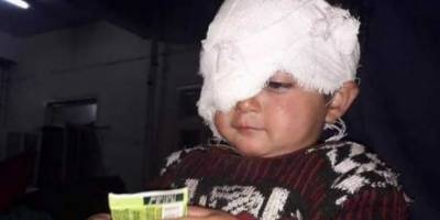 IOK Hiba Nisar, World's youngest pellet gun victim by Indian Army, unable to shake conscious of global human rights champions
