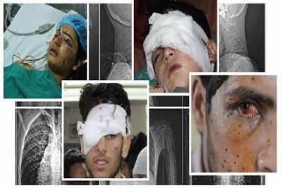 In occupied Kashmir, hundreds of pellet gun victims face a hazy future