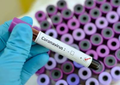 Chinese Nationals working on CPEC projects tested coronavirus positive in Lahore Hospital