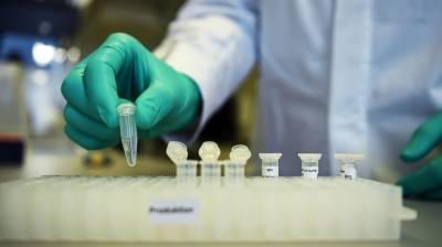 Pakistani Medical Experts claim discovering the anti coronavirus drug